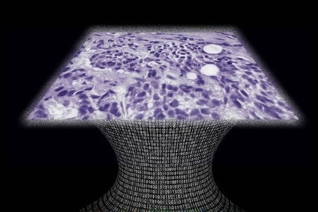 Lens-Free Microscope Could Lead To Cheaper, Portable Imaging Tech