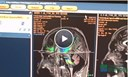 Philips Image Enables The EHR