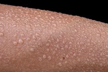 Sweat Sensors Could Bring Medical Diagnostics To Wearables
