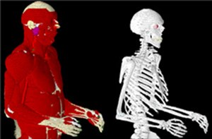 <B>Varipose®:Biological Mesh Repositioning Software</B>