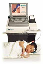 newborn hearing screener