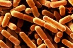 The Listeria Outbreak That Goes On And On And On…