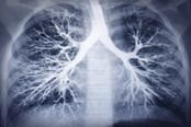 AstraZeneca, Qiagen Partner For IRESS Companion Test In NSCLC