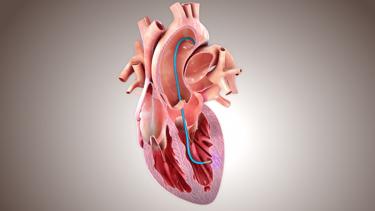 Heart procedure image_BioCardia_May 2020