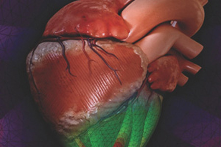 New Device Replicates Natural Motion Of Human Heart