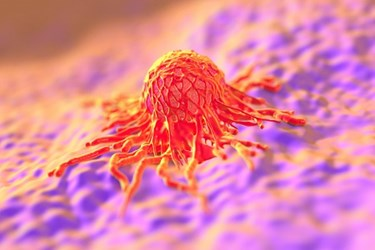 cancer tumor