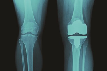 Protective Solutions For The Orthopedic Market