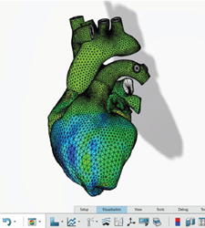 SIMULIA Living Heart Human Model, Dassault Systemes