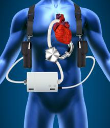 artificial heart devices Global artificial heart market: overview an artificial heart (or more specifically total artificial heart) can be considered as a prosthetic device implanted into the body to replace the organic mammalian heart.