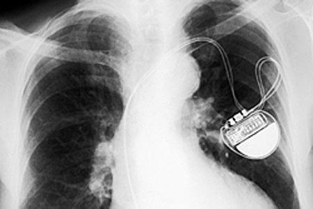 Battery-Free Pacemakers Are Powered By Patient's Heartbeat