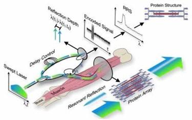 fiber-muscle-biopsy