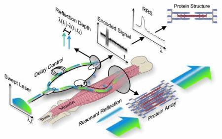fiber optics may provide minimally invasive alternative to, Muscles