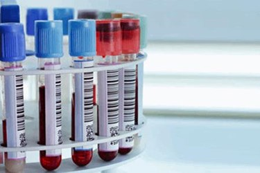 Why Your R&D Externalization Strategy Needs A Laboratory Informatics Strategy