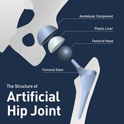 DePuy Synthes Bringing Hip Surgery To The Front