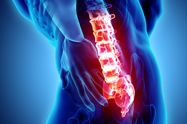 Spine-Lower-Back-Pain-iStock-916995352