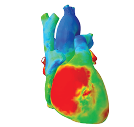 Advancing Heart Simulation To Save Lives