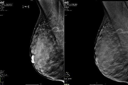 digital breast tomosynthesis dbt Original article digital breast tomosynthesis (dbt): initial experience in a clinical setting per skaane1, randi gullien1, hilde bjørndal2, ellen b eben1, ulrika ekseth3,.