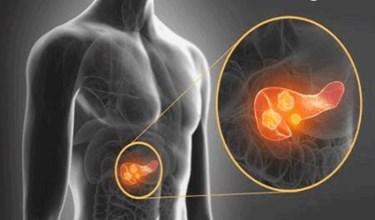 Light Scattering Spectroscopy Helps Doctors