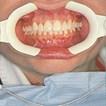 Cheek and Lip Retractor