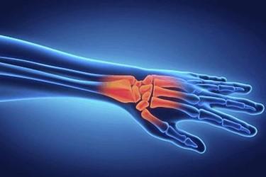 xray arthritis hand bone