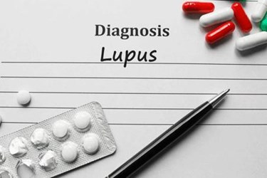 Lupus Research Alliance Enhances Clinical Trials for Patients