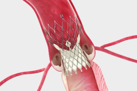 open heart surgery #8