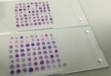 tissue microarray (TMA)