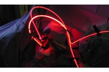 light-based treatments