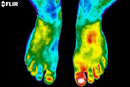 Using Thermal Imaging For Companion Diagnostics