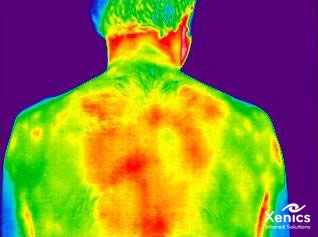 Thermal Medical Imaging By Xenics