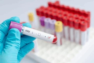 Janssen's Encouraging HIV Vaccine Trial Results