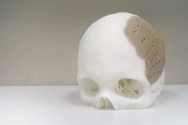 3D Printed Skull Implant