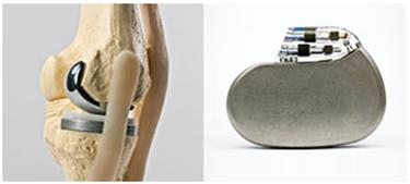 Orthopedic and Implantable Sterilization