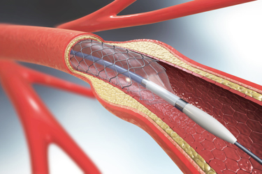 stent implantation for supporting blood circulation into blood vessels