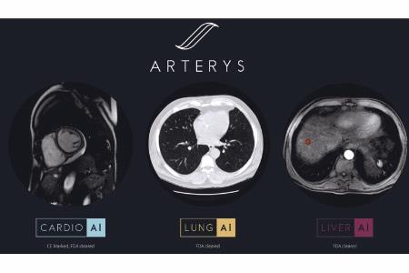 Arterys Receives First FDA Clearance For Broad Oncology Imaging