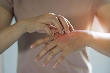 Dermatitis skin itch dermatology.jpg