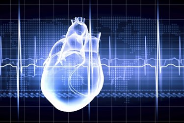 EHR Data Aids Study Cardiac Structure