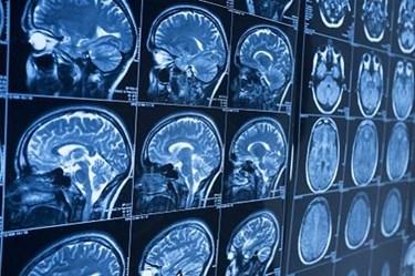 MRI-brain-head
