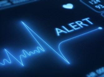 HTO EKG Alert